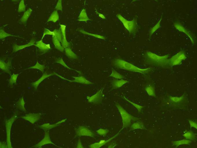 ICC staining GAP43 in NIH/3T3 cells (green). Cells were fixed in paraformaldehyde, permeabilised with 0.25% Triton X100/PBS.