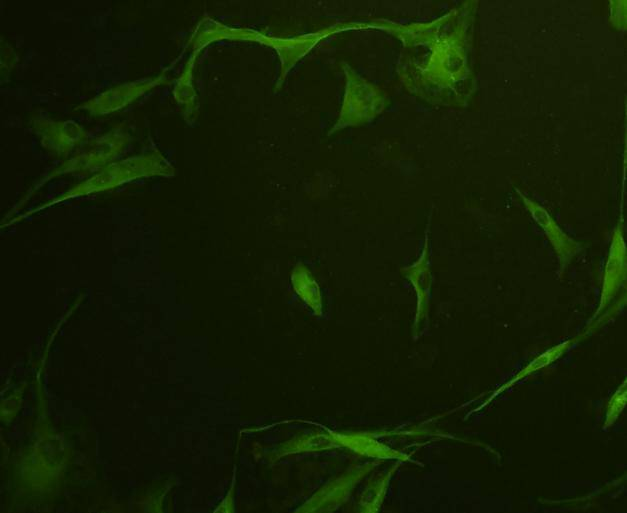 ICC staining GAP43 in A172 cells (green). Cells were fixed in paraformaldehyde, permeabilised with 0.25% Triton X100/PBS.