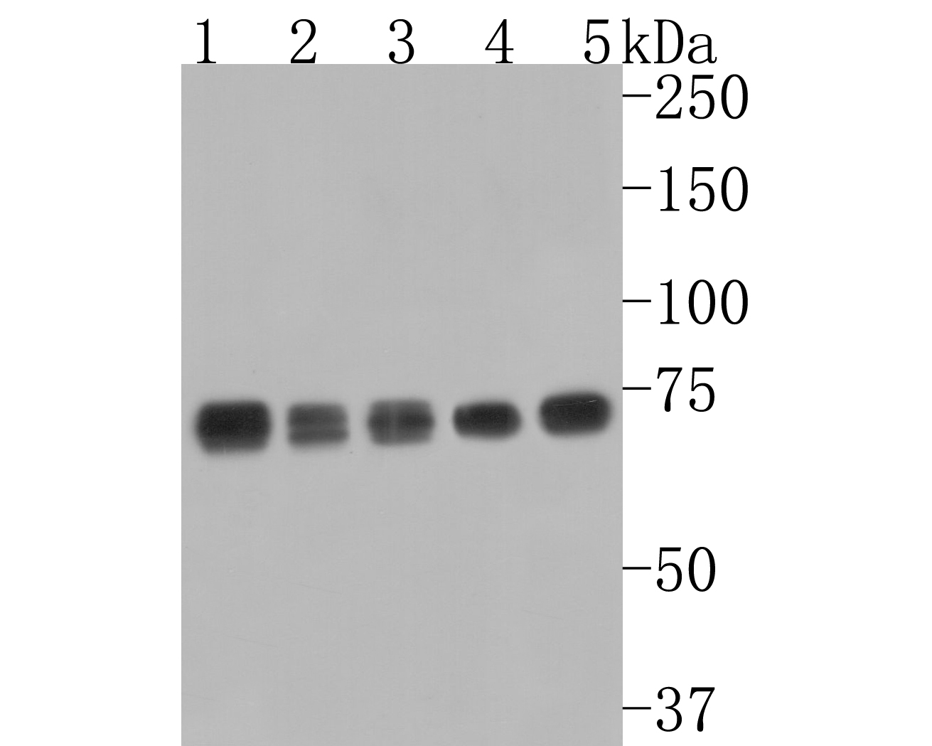 Western blot analysis of GRP78 on different cell lysates using anti-GRP78 antibody at 1/2000 dilution.