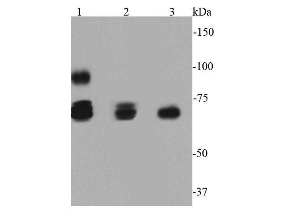 Western blot analysis of HSP70 on different cell lysates using anti-HSP70 antibody at 1/500 dilution.<br />  Positive control: <br />  Lane 1: A549 <br />  Lane 2: MCF-7 <br />  Lane 3: HCT116