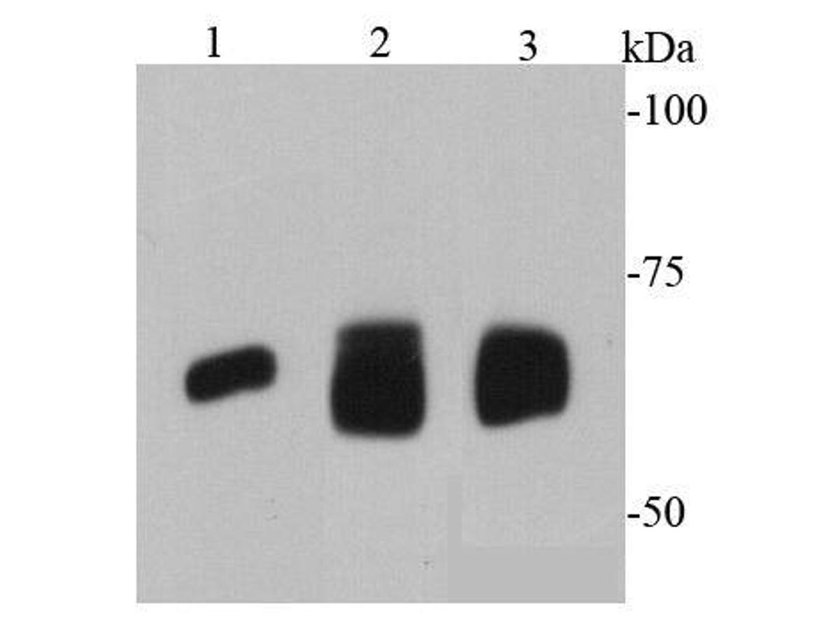 Western blot analysis of AFP on different cell lysates using anti-AFP antibody at 1/1000 dilution.<br />  Positive control: <br />  Lane 1: HepG2 <br />  Lane 2: human lung <br />  Lane 3: human liver