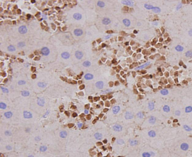 Immunohistochemical analysis of paraffin-embedded human liver cancer tissue using anti-AFP antibody. Counter stained with hematoxylin.