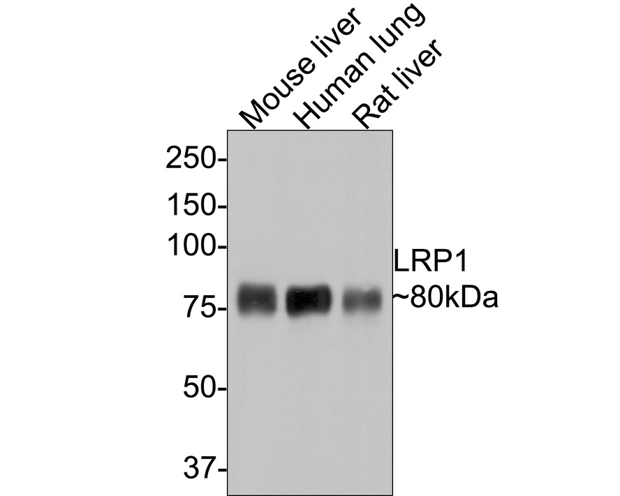Western blot analysis of LRP1 on different lysates. Proteins were transferred to a PVDF membrane and blocked with 5% BSA in PBS for 1 hour at room temperature. The primary antibody (ET1601-1, 1/500) was used in 5% BSA at room temperature for 2 hours. Goat Anti-Rabbit IgG - HRP Secondary Antibody (HA1001) at 1:5,000 dilution was used for 1 hour at room temperature.<br /> Positive control: <br /> Lane 1: mouse liver tissue lysate<br /> Lane 2: mouse lung  tissue lysate<br /> Lane 3: human liver  tissue lysate<br /> Lane 4: human lung tissue lysate