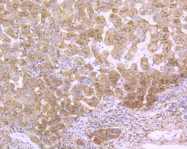 Flow cytometric analysis of LRP1 was done on Hela cells. The cells were fixed, permeabilized and stained with the primary antibody (ET1601-1, 1/50) (blue). After incubation of the primary antibody at room temperature for an hour, the cells were stained with a Alexa Fluor 488-conjugated Goat anti-Rabbit IgG Secondary antibody at 1/1000 dilution for 30 minutes.Unlabelled sample was used as a control (cells without incubation with primary antibody; red).