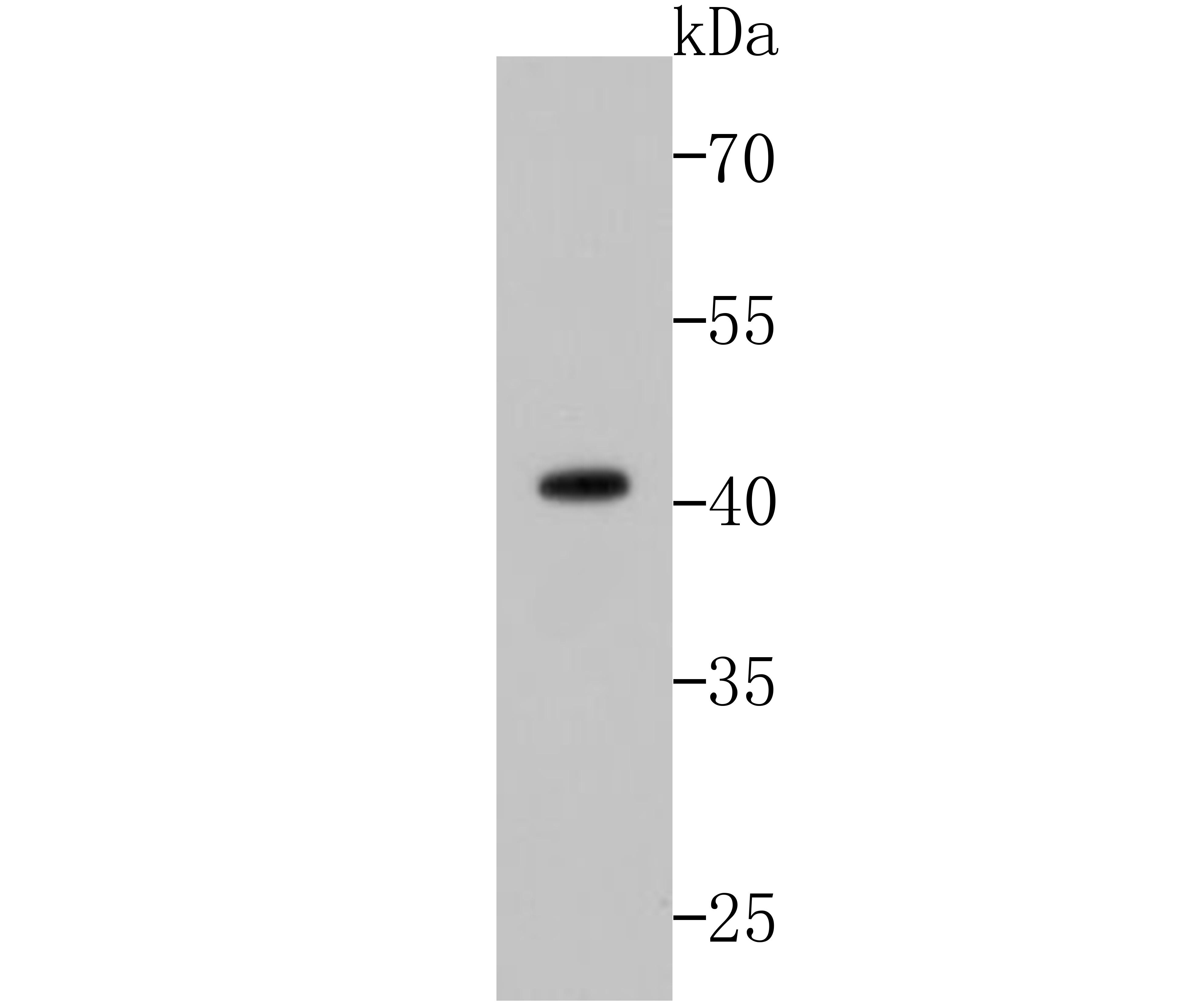 Western blot analysis of p53 on zebrafish tissue lysates. Proteins were transferred to a PVDF membrane and blocked with 5% BSA in PBS for 1 hour at room temperature. The primary antibody (ET1601-13, 1/500) was used in 5% BSA at room temperature for 2 hours. Goat Anti-Rabbit IgG - HRP Secondary Antibody (HA1001) at 1:5,000 dilution was used for 1 hour at room temperature.