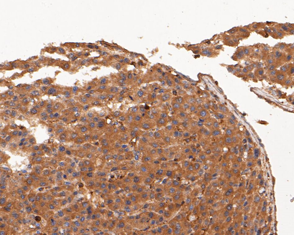 Immunohistochemical analysis of paraffin-embedded human liver carcinoma tissue using anti-p53 antibody. The section was pre-treated using heat mediated antigen retrieval with sodium citrate buffer (pH 6.0) for 20 minutes. The tissues were blocked in 5% BSA for 30 minutes at room temperature, washed with ddH2O and PBS, and then probed with the primary antibody (ET1601-13, 1/50) for 30 minutes at room temperature. The detection was performed using an HRP conjugated compact polymer system. DAB was used as the chromogen. Tissues were counterstained with hematoxylin and mounted with DPX.