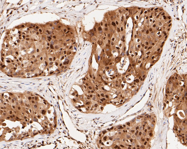 Immunohistochemical analysis of paraffin-embedded human breast carcinoma tissue using anti-CREB antibody. The section was pre-treated using heat mediated antigen retrieval with sodium citrate buffer (pH 6.0) for 20 minutes. The tissues were blocked in 5% BSA for 30 minutes at room temperature, washed with ddH2O and PBS, and then probed with the primary antibody (ET1601-15, 1/500) for 30 minutes at room temperature. The detection was performed using an HRP conjugated compact polymer system. DAB was used as the chromogen. Tissues were counterstained with hematoxylin and mounted with DPX.
