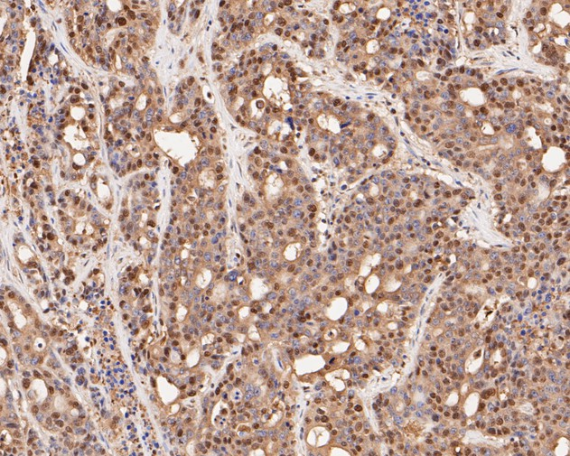 Immunohistochemical analysis of paraffin-embedded human stomach carcinoma tissue using anti-CREB antibody. The section was pre-treated using heat mediated antigen retrieval with sodium citrate buffer (pH 6.0) for 20 minutes. The tissues were blocked in 5% BSA for 30 minutes at room temperature, washed with ddH2O and PBS, and then probed with the primary antibody (ET1601-15, 1/500) for 30 minutes at room temperature. The detection was performed using an HRP conjugated compact polymer system. DAB was used as the chromogen. Tissues were counterstained with hematoxylin and mounted with DPX.