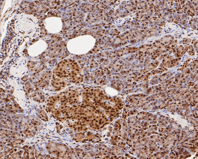 Immunohistochemical analysis of paraffin-embedded human pancreas tissue using anti-CREB antibody. The section was pre-treated using heat mediated antigen retrieval with sodium citrate buffer (pH 6.0) for 20 minutes. The tissues were blocked in 5% BSA for 30 minutes at room temperature, washed with ddH2O and PBS, and then probed with the primary antibody (ET1601-15, 1/500) for 30 minutes at room temperature. The detection was performed using an HRP conjugated compact polymer system. DAB was used as the chromogen. Tissues were counterstained with hematoxylin and mounted with DPX.