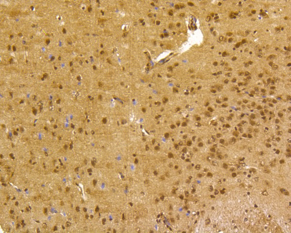 Immunohistochemical analysis of paraffin-embedded mouse brain tissue using anti-CREB antibody. The section was pre-treated using heat mediated antigen retrieval with Tris-EDTA buffer (pH 8.0-8.4) for 20 minutes.The tissues were blocked in 5% BSA for 30 minutes at room temperature, washed with ddH2O and PBS, and then probed with the primary antibody (ET1601-15, 1/200) for 30 minutes at room temperature. The detection was performed using an HRP conjugated compact polymer system. DAB was used as the chromogen. Tissues were counterstained with hematoxylin and mounted with DPX.