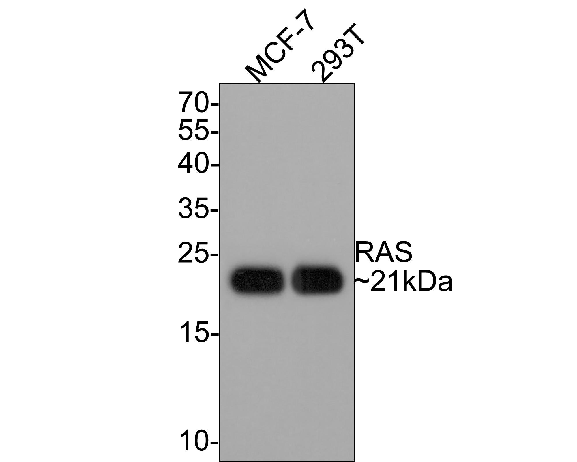 Western blot analysis of Ras on different lysates. Proteins were transferred to a PVDF membrane and blocked with 5% BSA in PBS for 1 hour at room temperature. The primary antibody (ET1601-16, 1/500) was used in 5% BSA at room temperature for 2 hours. Goat Anti-Rabbit IgG - HRP Secondary Antibody (HA1001) at 1:5,000 dilution was used for 1 hour at room temperature. Positive control:  Lane 1: MCF-7 cell lysate Lane 2: 293T cell lysate Lane 3: mouse brain tissue lysate