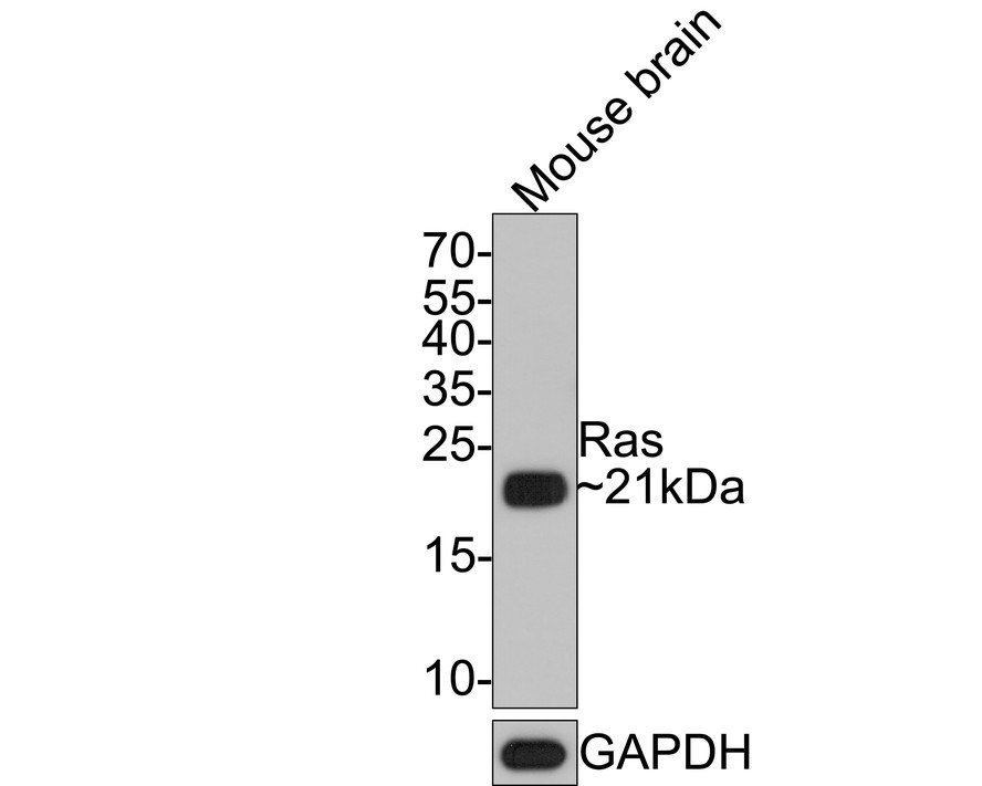 Flow cytometric analysis of Ras was done on Hela cells. The cells were fixed, permeabilized and stained with the primary antibody (ET1601-16, 1/50) (blue). After incubation of the primary antibody at room temperature for an hour, the cells were stained with a Alexa Fluor 488-conjugated Goat anti-Rabbit IgG Secondary antibody at 1/1000 dilution for 30 minutes.Unlabelled sample was used as a control (cells without incubation with primary antibody; red).