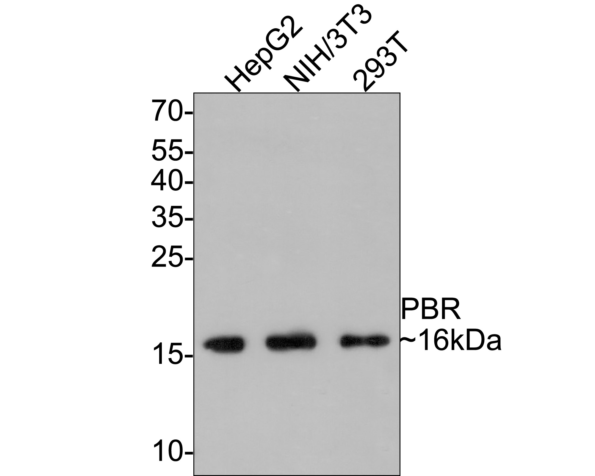 Western blot analysis of PBR on different lysates. Proteins were transferred to a PVDF membrane and blocked with 5% BSA in PBS for 1 hour at room temperature. The primary antibody (ET1601-19, 1/500) was used in 5% BSA at room temperature for 2 hours. Goat Anti-Rabbit IgG - HRP Secondary Antibody (HA1001) at 1:5,000 dilution was used for 1 hour at room temperature.<br />  Positive control: <br />  Lane 1: 293T cell lysate<br />  Lane 2: NIH/3T3 cell lysate<br />  Lane 3: HepG2 cell lysate