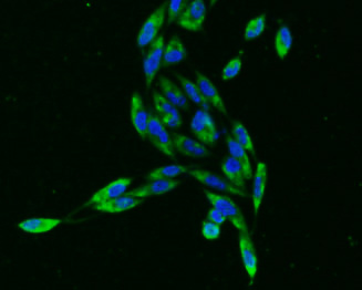 ICC staining of PBR in PC-3M cells (green). Formalin fixed cells were permeabilized with 0.1% Triton X-100 in TBS for 10 minutes at room temperature and blocked with 1% Blocker BSA for 15 minutes at room temperature. Cells were probed with the primary antibody (ET1601-19, 1/50) for 1 hour at room temperature, washed with PBS. Alexa Fluor®488 Goat anti-Rabbit IgG was used as the secondary antibody at 1/1,000 dilution. The nuclear counter stain is DAPI (blue).
