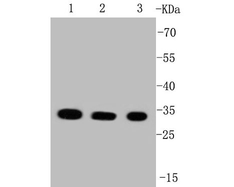 Western blot analysis of VDAC1 on different lysates. Proteins were transferred to a PVDF membrane and blocked with 5% BSA in PBS for 1 hour at room temperature. The primary antibody (ET1601-20, 1/500) was used in 5% BSA at room temperature for 2 hours. Goat Anti-Rabbit IgG - HRP Secondary Antibody (HA1001) at 1:5,000 dilution was used for 1 hour at room temperature.<br /> Positive control: <br /> Lane 1: Raji cell lysate<br /> Lane 2: HepG2 cell lysate<br /> Lane 2: SW480 cell lysate