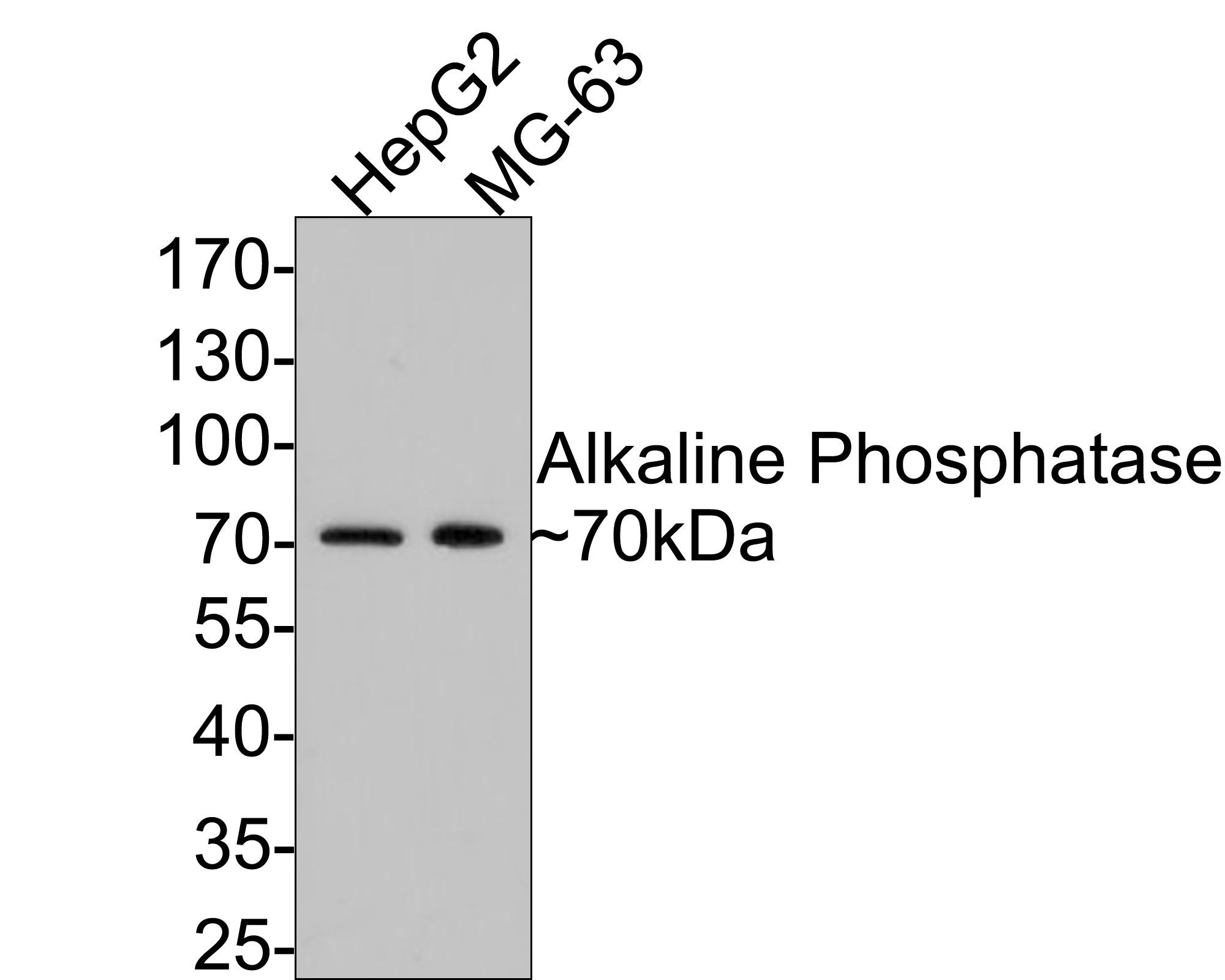 Western blot analysis of Alkaline Phosphatase on different lysates. Proteins were transferred to a PVDF membrane and blocked with 5% BSA in PBS for 1 hour at room temperature. The primary antibody (ET1601-21, 1/500) was used in 5% BSA at room temperature for 2 hours. Goat Anti-Rabbit IgG - HRP Secondary Antibody (HA1001) at 1:5,000 dilution was used for 1 hour at room temperature.<br /> Positive control: <br /> Lane 1: Hela cell lysate<br /> Lane 2: HepG2 cell lysate<br /> Lane 2: MG-63 cell lysate