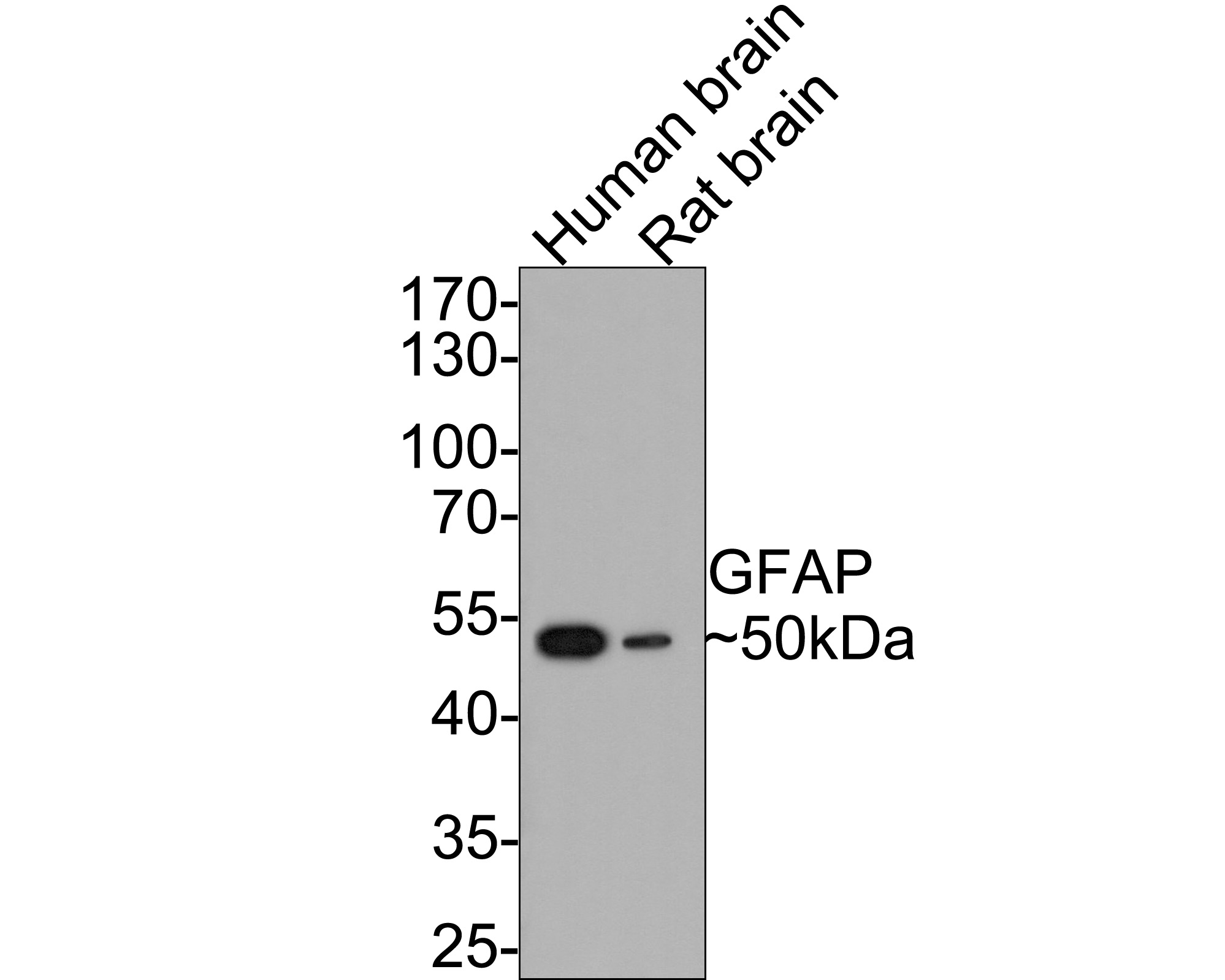 Western blot analysis of GFAP on rat brain tissue lysates. Proteins were transferred to a PVDF membrane and blocked with 5% BSA in PBS for 1 hour at room temperature. The primary antibody (ET1601-23, 1/500) was used in 5% BSA at room temperature for 2 hours. Goat Anti-Rabbit IgG - HRP Secondary Antibody (HA1001) at 1:5,000 dilution was used for 1 hour at room temperature.