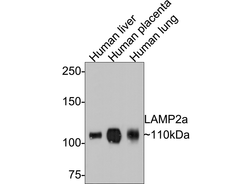 Western blot analysis of LAMP2a on different lysates. Proteins were transferred to a PVDF membrane and blocked with 5% BSA in PBS for 1 hour at room temperature. The primary antibody (ET1601-24, 1/500) was used in 5% BSA at room temperature for 2 hours. Goat Anti-Rabbit IgG - HRP Secondary Antibody (HA1001) at 1:5,000 dilution was used for 1 hour at room temperature.<br />  Positive control: <br />  Lane 1: human liver tissue lysate<br />  Lane 2: JAR cell lysate<br />  Lane 3: human placenta tissue lysate<br />  Lane 4: human lung tissue lysate