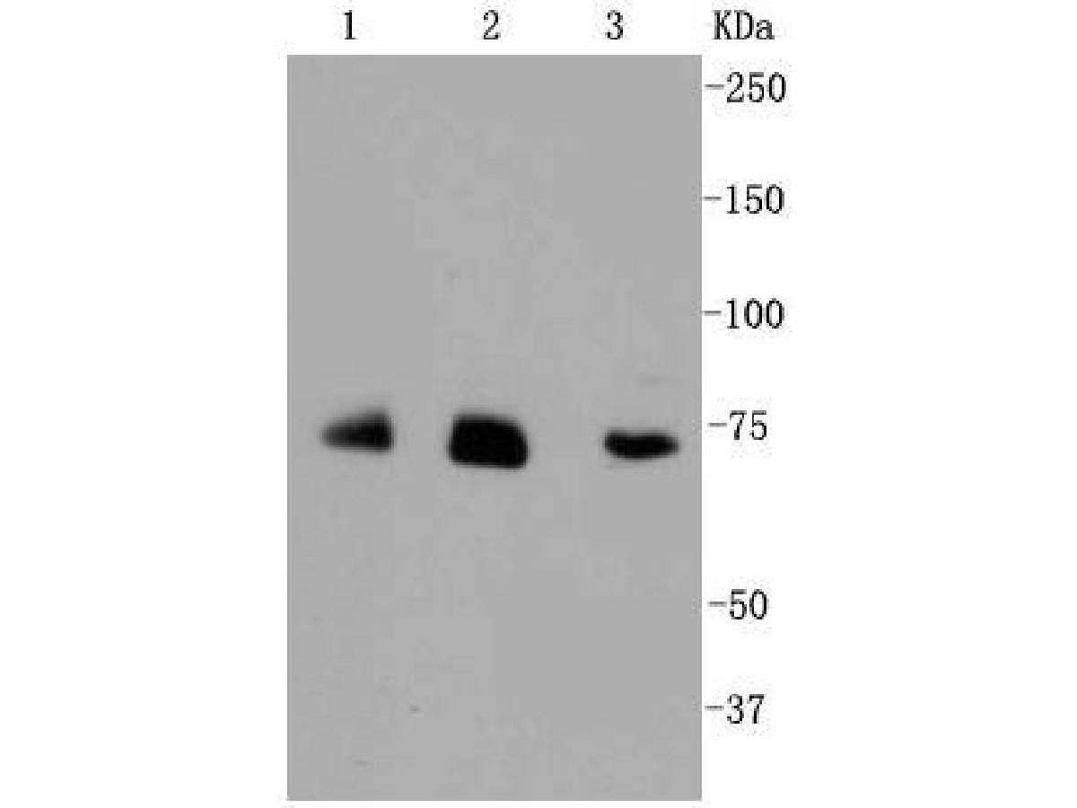 Western blot analysis of Alas1 on different cell lysates using anti-Alas1 antibody at 1/1,000 dilution.<br /> Positive control: <br /> Lane 1: JAR <br /> Lane 2: HUVEC <br /> Lane 3: Hela
