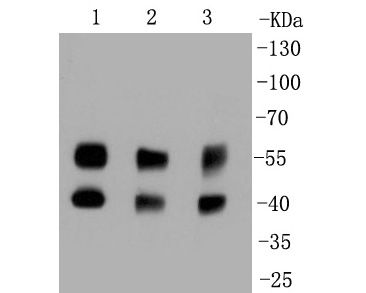 Western blot analysis of JNK1+JNK2+JNK3 on different lysates. Proteins were transferred to a PVDF membrane and blocked with 5% BSA in PBS for 1 hour at room temperature. The primary antibody (ET1601-28, 1/500) was used in 5% BSA at room temperature for 2 hours. Goat Anti-Rabbit IgG - HRP Secondary Antibody (HA1001) at 1:5,000 dilution was used for 1 hour at room temperature.<br />  Positive control: <br />  Lane 1: Hela cell lysate<br />  Lane 2: PC-12 cell lysate<br />  Lane 2: K562 cell lysate