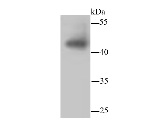 Western blot analysis of JNK1+JNK2+JNK3 on hybrid fish (crucian-carp) brain tissue lysates. Proteins were transferred to a PVDF membrane and blocked with 5% BSA in PBS for 1 hour at room temperature. The primary antibody (ET1601-28, 1/500) was used in 5% BSA at room temperature for 2 hours. Goat Anti-Rabbit IgG - HRP Secondary Antibody (HA1001) at 1:5,000 dilution was used for 1 hour at room temperature.