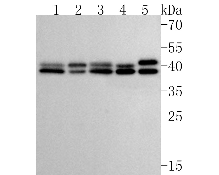 Western blot analysis of ERK1/2 on different lysates. Proteins were transferred to a PVDF membrane and blocked with 5% BSA in PBS for 1 hour at room temperature. The primary antibody (ET1601-29, 1/500) was used in 5% BSA at room temperature for 2 hours. Goat Anti-Rabbit IgG - HRP Secondary Antibody (HA1001) at 1:5,000 dilution was used for 1 hour at room temperature.<br /> Positive control: <br /> Lane 1: Hela cell lysate<br /> Lane 2: SW480 cell lysate<br /> Lane 3: HCT116 cell lysate<br /> Lane 4: PC-12 cell lysate