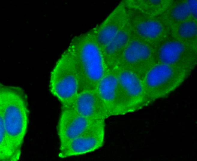 ICC staining of Filamin A in Hela cells (green). Formalin fixed cells were permeabilized with 0.1% Triton X-100 in TBS for 10 minutes at room temperature and blocked with 1% Blocker BSA for 15 minutes at room temperature. Cells were probed with the primary antibody (ET1601-3, 1/50) for 1 hour at room temperature, washed with PBS. Alexa Fluor®488 Goat anti-Rabbit IgG was used as the secondary antibody at 1/1,000 dilution. The nuclear counter stain is DAPI (blue).
