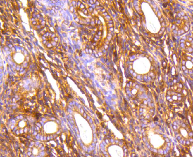 Immunohistochemical analysis of paraffin-embedded mouse uterus tissue using anti-Filamin A antibody. The section was pre-treated using heat mediated antigen retrieval with Tris-EDTA buffer (pH 8.0-8.4) for 20 minutes.The tissues were blocked in 5% BSA for 30 minutes at room temperature, washed with ddH2O and PBS, and then probed with the primary antibody (ET1601-3, 1/400) for 30 minutes at room temperature. The detection was performed using an HRP conjugated compact polymer system. DAB was used as the chromogen. Tissues were counterstained with hematoxylin and mounted with DPX.
