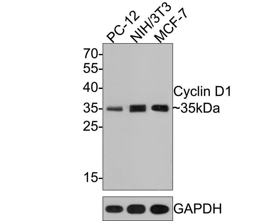 Western blot analysis of Cyclin D1 on different lysates. Proteins were transferred to a PVDF membrane and blocked with 5% BSA in PBS for 1 hour at room temperature. The primary antibody (ET1601-31, 1/500) was used in 5% BSA at room temperature for 2 hours. Goat Anti-Rabbit IgG - HRP Secondary Antibody (HA1001) at 1:5,000 dilution was used for 1 hour at room temperature.<br /> Positive control: <br /> Lane 1: Hela cell lysate<br /> Lane 2: PC-12 cell lysate<br /> Lane 3: SH-SY5Y cell lysate