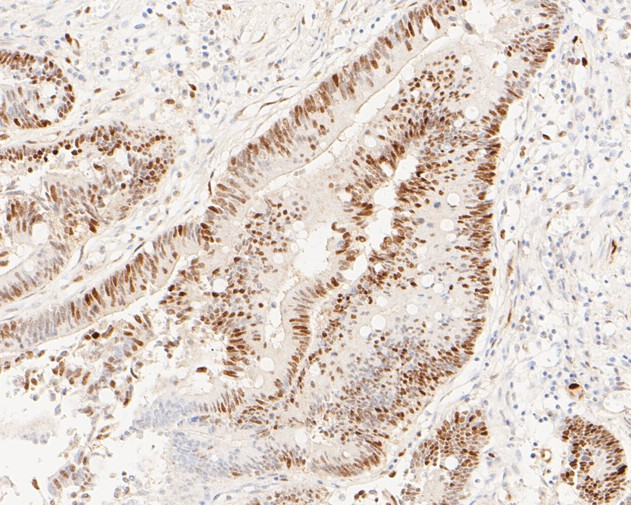 Immunohistochemical analysis of paraffin-embedded human colon carcinoma tissue using anti-Cyclin D1 antibody. The section was pre-treated using heat mediated antigen retrieval with sodium citrate buffer (pH 6.0) for 20 minutes. The tissues were blocked in 5% BSA for 30 minutes at room temperature, washed with ddH2O and PBS, and then probed with the primary antibody (ET1601-31, 1/200)  for 30 minutes at room temperature. The detection was performed using an HRP conjugated compact polymer system. DAB was used as the chromogen. Tissues were counterstained with hematoxylin and mounted with DPX.