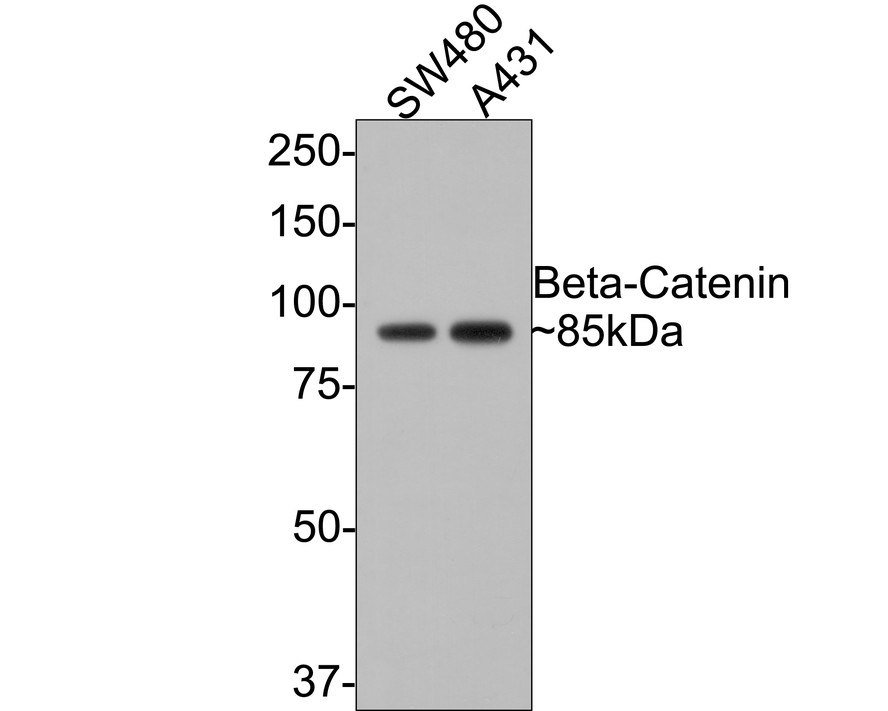 Western blot analysis of Beta-Catenin on different lysates. Proteins were transferred to a PVDF membrane and blocked with 5% BSA in PBS for 1 hour at room temperature. The primary antibody (ET1601-5, 1/500) was used in 5% BSA at room temperature for 2 hours. Goat Anti-Rabbit IgG - HRP Secondary Antibody (HA1001) at 1:5,000 dilution was used for 1 hour at room temperature.<br /> Positive control: <br /> Lane 1: SW480 cell lysate<br /> Lane 2: HT-29 cell lysate<br /> Lane 3: A431 cell lysate