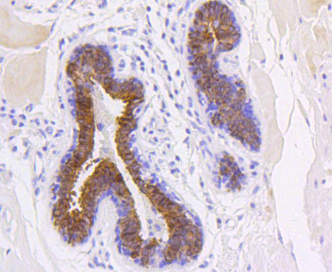Immunohistochemical analysis of paraffin-embedded human stomach carcinoma tissue using anti-Cytokeratin 19 antibody. The section was pre-treated using heat mediated antigen retrieval with Tris-EDTA buffer (pH 8.0-8.4) for 20 minutes.The tissues were blocked in 5% BSA for 30 minutes at room temperature, washed with ddH2O and PBS, and then probed with the primary antibody (ET1601-6, 1/50) for 30 minutes at room temperature. The detection was performed using an HRP conjugated compact polymer system. DAB was used as the chromogen. Tissues were counterstained with hematoxylin and mounted with DPX.