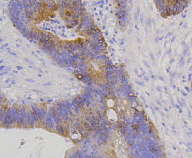 Immunohistochemical analysis of paraffin-embedded human colon carcinoma tissue using anti-Cytokeratin 20 antibody. The section was pre-treated using heat mediated antigen retrieval with Tris-EDTA buffer (pH 8.0-8.4) for 20 minutes.The tissues were blocked in 5% BSA for 30 minutes at room temperature, washed with ddH2O and PBS, and then probed with the primary antibody (ET1601-8, 1/50) for 30 minutes at room temperature. The detection was performed using an HRP conjugated compact polymer system. DAB was used as the chromogen. Tissues were counterstained with hematoxylin and mounted with DPX.