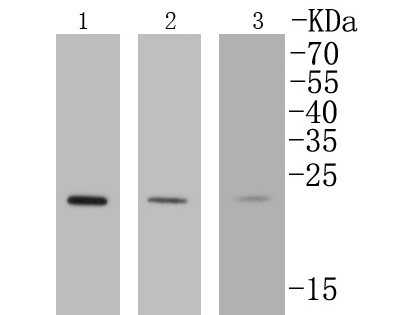 Western blot analysis of Rab4A on different lysates. Proteins were transferred to a PVDF membrane and blocked with 5% BSA in PBS for 1 hour at room temperature. The primary antibody (ET1602-15, 1/500) was used in 5% BSA at room temperature for 2 hours. Goat Anti-Rabbit IgG - HRP Secondary Antibody (HA1001) at 1:5,000 dilution was used for 1 hour at room temperature.<br />  Positive control: <br />  Lane 1: MCF-7 cell lysate<br />  Lane 2: 293T cell lysate<br />  Lane 3: COS-1 cell lysate