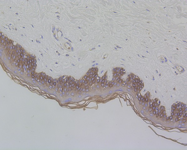 Immunohistochemical analysis of paraffin-embedded human prostate tissue using anti-Cytokeratin 17 antibody. The section was pre-treated using heat mediated antigen retrieval with Tris-EDTA buffer (pH 8.0-8.4) for 20 minutes.The tissues were blocked in 5% BSA for 30 minutes at room temperature, washed with ddH2O and PBS, and then probed with the primary antibody (ET1602-16, 1/50) for 30 minutes at room temperature. The detection was performed using an HRP conjugated compact polymer system. DAB was used as the chromogen. Tissues were counterstained with hematoxylin and mounted with DPX.