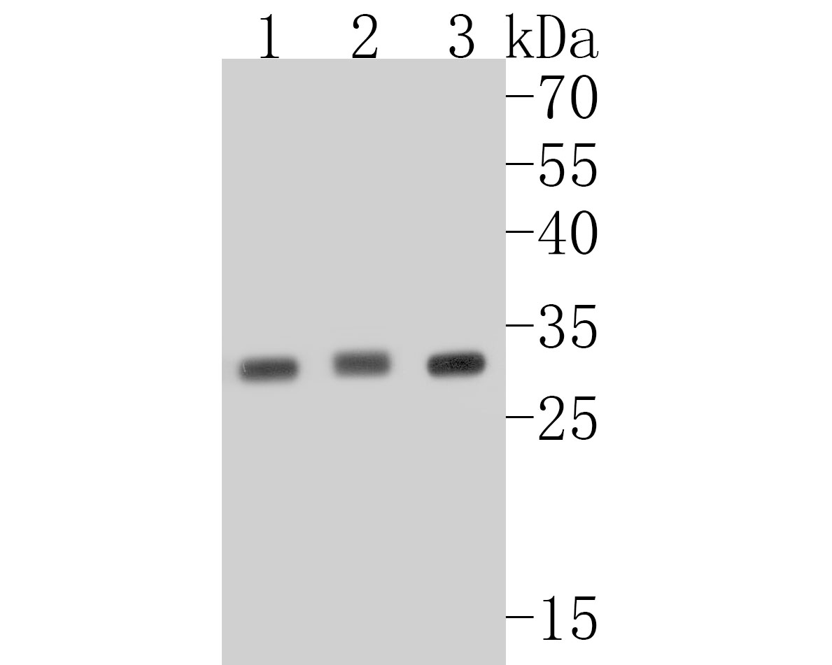Western blot analysis of Cdk5 on different lysates. Proteins were transferred to a PVDF membrane and blocked with 5% BSA in PBS for 1 hour at room temperature. The primary antibody (ET1602-17, 1/500) was used in 5% BSA at room temperature for 2 hours. Goat Anti-Rabbit IgG - HRP Secondary Antibody (HA1001) at 1:5,000 dilution was used for 1 hour at room temperature.<br /> Positive control: <br /> Lane 1: Hela cell lysate<br /> Lane 2: SH-SY5Y cell lysate<br /> Lane 3: MCF-7 cell lysate