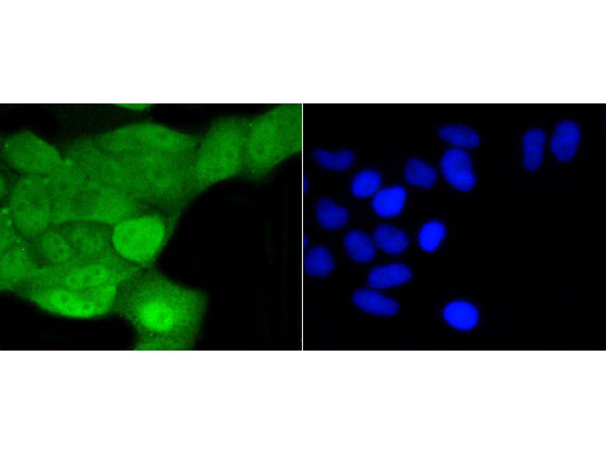 ICC staining of SHP1 in Hela cells (green). Formalin fixed cells were permeabilized with 0.1% Triton X-100 in TBS for 10 minutes at room temperature and blocked with 1% Blocker BSA for 15 minutes at room temperature. Cells were probed with the primary antibody (ET1602-19, 1/50) for 1 hour at room temperature, washed with PBS. Alexa Fluor®488 Goat anti-Rabbit IgG was used as the secondary antibody at 1/1,000 dilution. The nuclear counter stain is DAPI (blue).