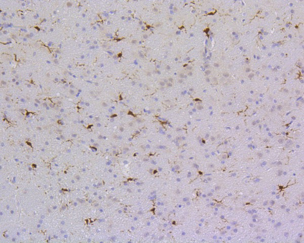 Immunohistochemical analysis of paraffin-embedded rat brain tissue using anti-SHP1 antibody. The section was pre-treated using heat mediated antigen retrieval with Tris-EDTA buffer (pH 8.0-8.4) for 20 minutes.The tissues were blocked in 5% BSA for 30 minutes at room temperature, washed with ddH2O and PBS, and then probed with the primary antibody (ET1602-19, 1/200) for 30 minutes at room temperature. The detection was performed using an HRP conjugated compact polymer system. DAB was used as the chromogen. Tissues were counterstained with hematoxylin and mounted with DPX.