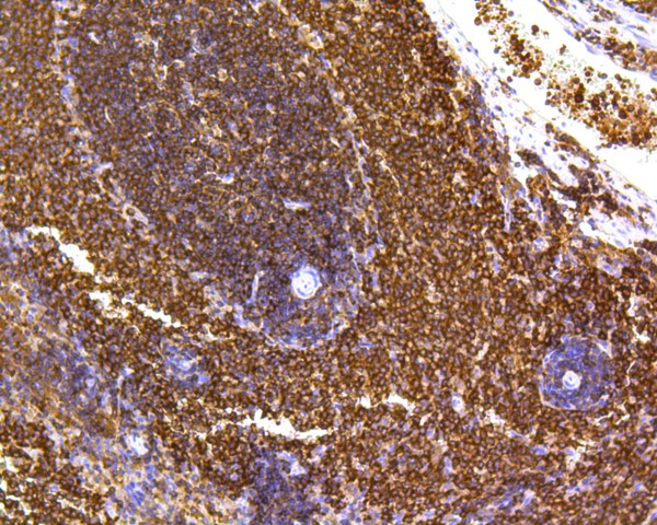 Immunohistochemical analysis of paraffin-embedded rat spleen tissue using anti-SHP1 antibody. The section was pre-treated using heat mediated antigen retrieval with Tris-EDTA buffer (pH 8.0-8.4) for 20 minutes.The tissues were blocked in 5% BSA for 30 minutes at room temperature, washed with ddH2O and PBS, and then probed with the primary antibody (ET1602-19, 1/200) for 30 minutes at room temperature. The detection was performed using an HRP conjugated compact polymer system. DAB was used as the chromogen. Tissues were counterstained with hematoxylin and mounted with DPX.