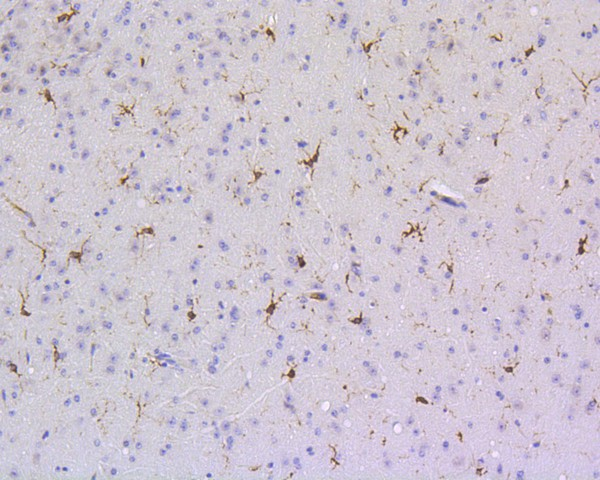 Immunohistochemical analysis of paraffin-embedded mouse brain tissue using anti-SHP1 antibody. The section was pre-treated using heat mediated antigen retrieval with Tris-EDTA buffer (pH 8.0-8.4) for 20 minutes.The tissues were blocked in 5% BSA for 30 minutes at room temperature, washed with ddH2O and PBS, and then probed with the primary antibody (ET1602-19, 1/200) for 30 minutes at room temperature. The detection was performed using an HRP conjugated compact polymer system. DAB was used as the chromogen. Tissues were counterstained with hematoxylin and mounted with DPX.