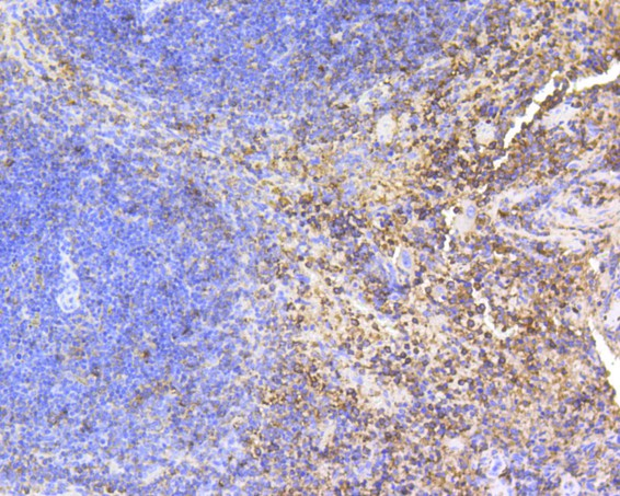 Immunohistochemical analysis of paraffin-embedded mouse spleen tissue using anti-SHP1 antibody. The section was pre-treated using heat mediated antigen retrieval with Tris-EDTA buffer (pH 8.0-8.4) for 20 minutes.The tissues were blocked in 5% BSA for 30 minutes at room temperature, washed with ddH2O and PBS, and then probed with the primary antibody (ET1602-19, 1/1,000) for 30 minutes at room temperature. The detection was performed using an HRP conjugated compact polymer system. DAB was used as the chromogen. Tissues were counterstained with hematoxylin and mounted with DPX.