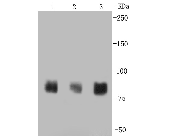 Western blot analysis of PSD95 on different lysates. Proteins were transferred to a PVDF membrane and blocked with 5% BSA in PBS for 1 hour at room temperature. The primary antibody (ET1602-20, 1/500) was used in 5% BSA at room temperature for 2 hours. Goat Anti-Rabbit IgG - HRP Secondary Antibody (HA1001) at 1:5,000 dilution was used for 1 hour at room temperature.<br />  Positive control: <br />  Lane 1: mouse brain tissue lysate<br />  Lane 2: human brain tissue lysate<br />  Lane 3: rat brain tissue lysate