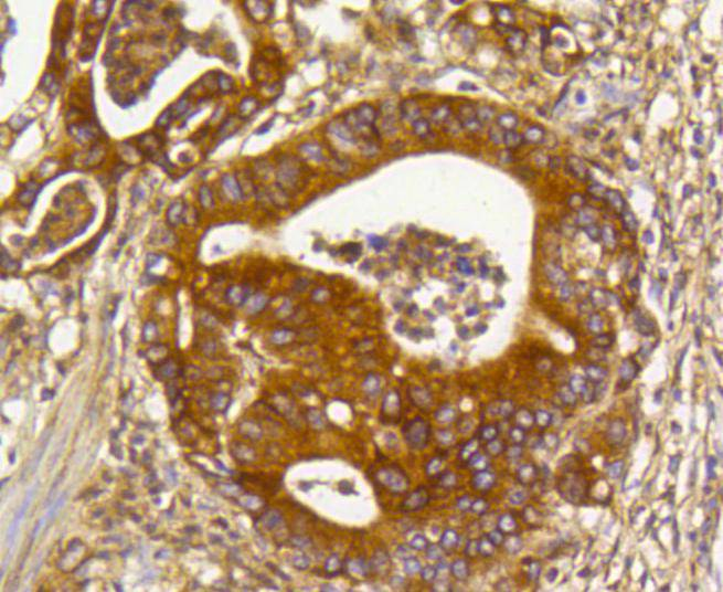 Immunohistochemical analysis of paraffin-embedded human gastric carcinoma tissue using anti-Rho A+B+C antibody. Counter stained with hematoxylin.