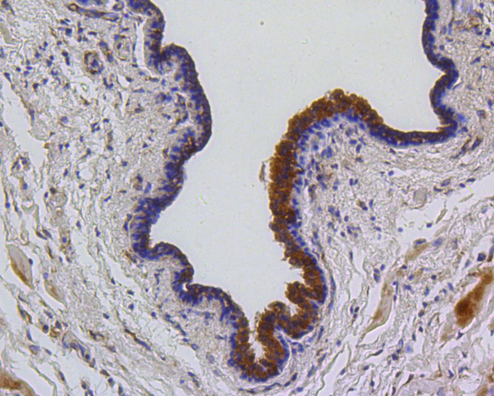 Immunohistochemical analysis of paraffin-embedded human breast carcinoma tissue using anti-PUMA antibody. The section was pre-treated using heat mediated antigen retrieval with Tris-EDTA buffer (pH 8.0-8.4) for 20 minutes.The tissues were blocked in 5% BSA for 30 minutes at room temperature, washed with ddH2O and PBS, and then probed with the primary antibody (ET1602-24, 1/50) for 30 minutes at room temperature. The detection was performed using an HRP conjugated compact polymer system. DAB was used as the chromogen. Tissues were counterstained with hematoxylin and mounted with DPX.