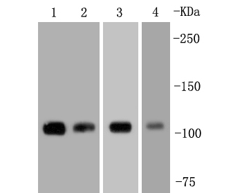 Western blot analysis of FAK on different lysates. Proteins were transferred to a PVDF membrane and blocked with 5% BSA in PBS for 1 hour at room temperature. The primary antibody (ET1602-25, 1/500) was used in 5% BSA at room temperature for 2 hours. Goat Anti-Rabbit IgG - HRP Secondary Antibody (HA1001) at 1:5,000 dilution was used for 1 hour at room temperature.<br />  Positive control: <br />  Lane 1: Hela cell lysate<br />  Lane 2: mouse spleen tissue lysate<br />  Lane 3: 293T cell lysate<br />  Lane 4: A431 cell lysate