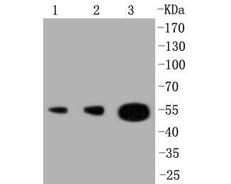 Western blot analysis of PI 3 Kinase p55 gamma on different lysates. Proteins were transferred to a PVDF membrane and blocked with 5% BSA in PBS for 1 hour at room temperature. The primary antibody (ET1602-27, 1/500) was used in 5% BSA at room temperature for 2 hours. Goat Anti-Rabbit IgG - HRP Secondary Antibody (HA1001) at 1:5,000 dilution was used for 1 hour at room temperature.<br />  Positive control: <br />  Lane 1: MCF-7 cell lysate<br />  Lane 2: Jurkat cell lysate<br />  Lane 3: human tonsil tissue lysate