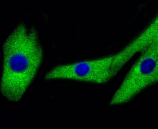 ICC staining of MEK1/2 in NIH/3T3 cells (green). Formalin fixed cells were permeabilized with 0.1% Triton X-100 in TBS for 10 minutes at room temperature and blocked with 1% Blocker BSA for 15 minutes at room temperature. Cells were probed with the primary antibody (ET1602-3, 1/50) for 1 hour at room temperature, washed with PBS. Alexa Fluor®488 Goat anti-Rabbit IgG was used as the secondary antibody at 1/1,000 dilution. The nuclear counter stain is DAPI (blue).
