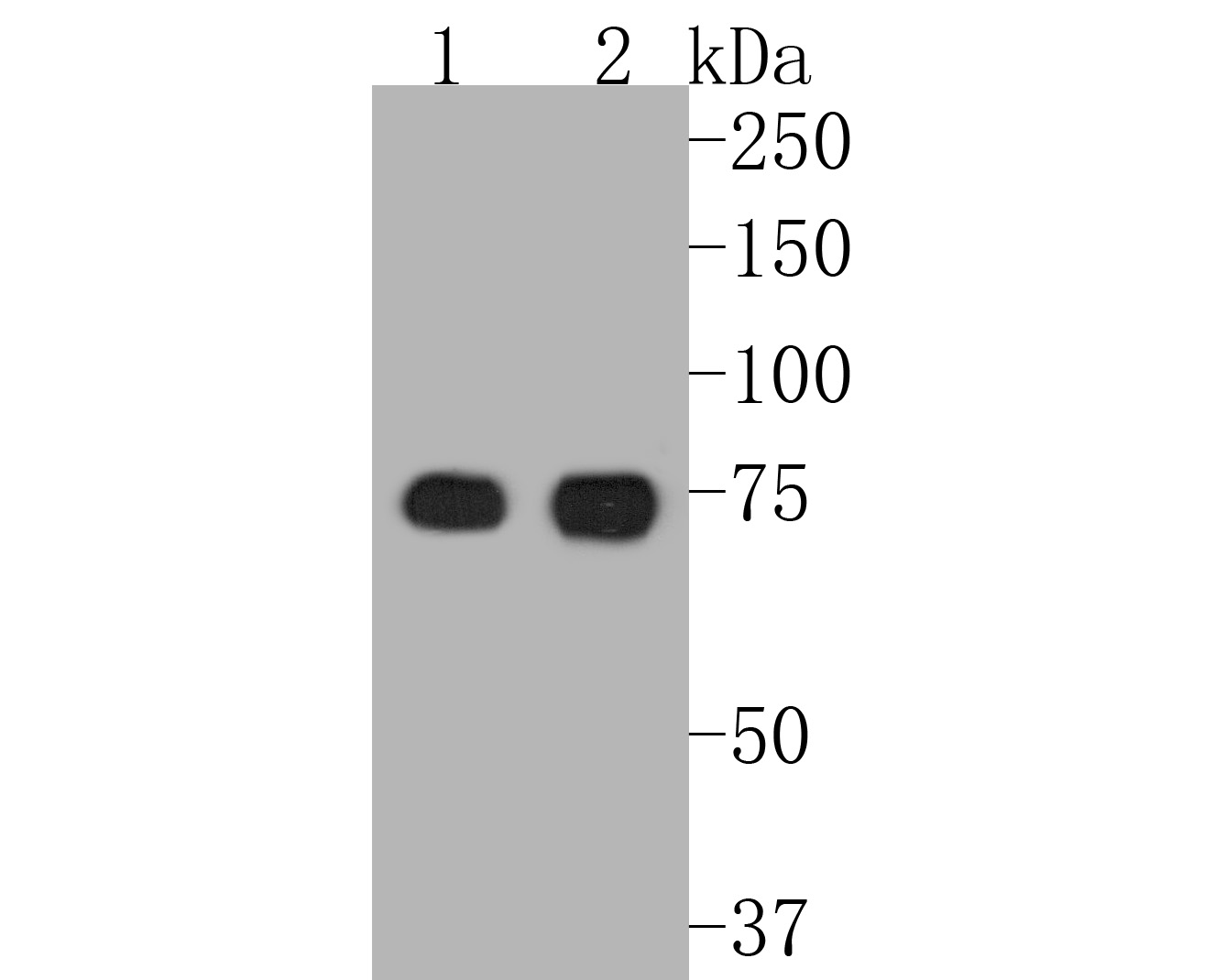 Western blot analysis of Scavenging Receptor SR-BI on different lysates. Proteins were transferred to a PVDF membrane and blocked with 5% BSA in PBS for 1 hour at room temperature. The primary antibody (ET1602-32, 1/500) was used in 5% BSA at room temperature for 2 hours. Goat Anti-Rabbit IgG - HRP Secondary Antibody (HA1001) at 1:5,000 dilution was used for 1 hour at room temperature.<br /> Positive control: <br /> Lane 1: mouse liver tissue lysate<br /> Lane 2: human liver tissue lysate