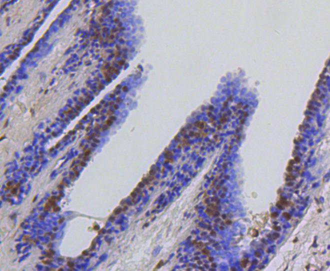 Immunohistochemical analysis of paraffin-embedded human breast carcinoma tissue using anti-Hsc70 antibody. The section was pre-treated using heat mediated antigen retrieval with Tris-EDTA buffer (pH 8.0-8.4) for 20 minutes.The tissues were blocked in 5% BSA for 30 minutes at room temperature, washed with ddH2O and PBS, and then probed with the primary antibody (ET1602-33, 1/50) for 30 minutes at room temperature. The detection was performed using an HRP conjugated compact polymer system. DAB was used as the chromogen. Tissues were counterstained with hematoxylin and mounted with DPX.