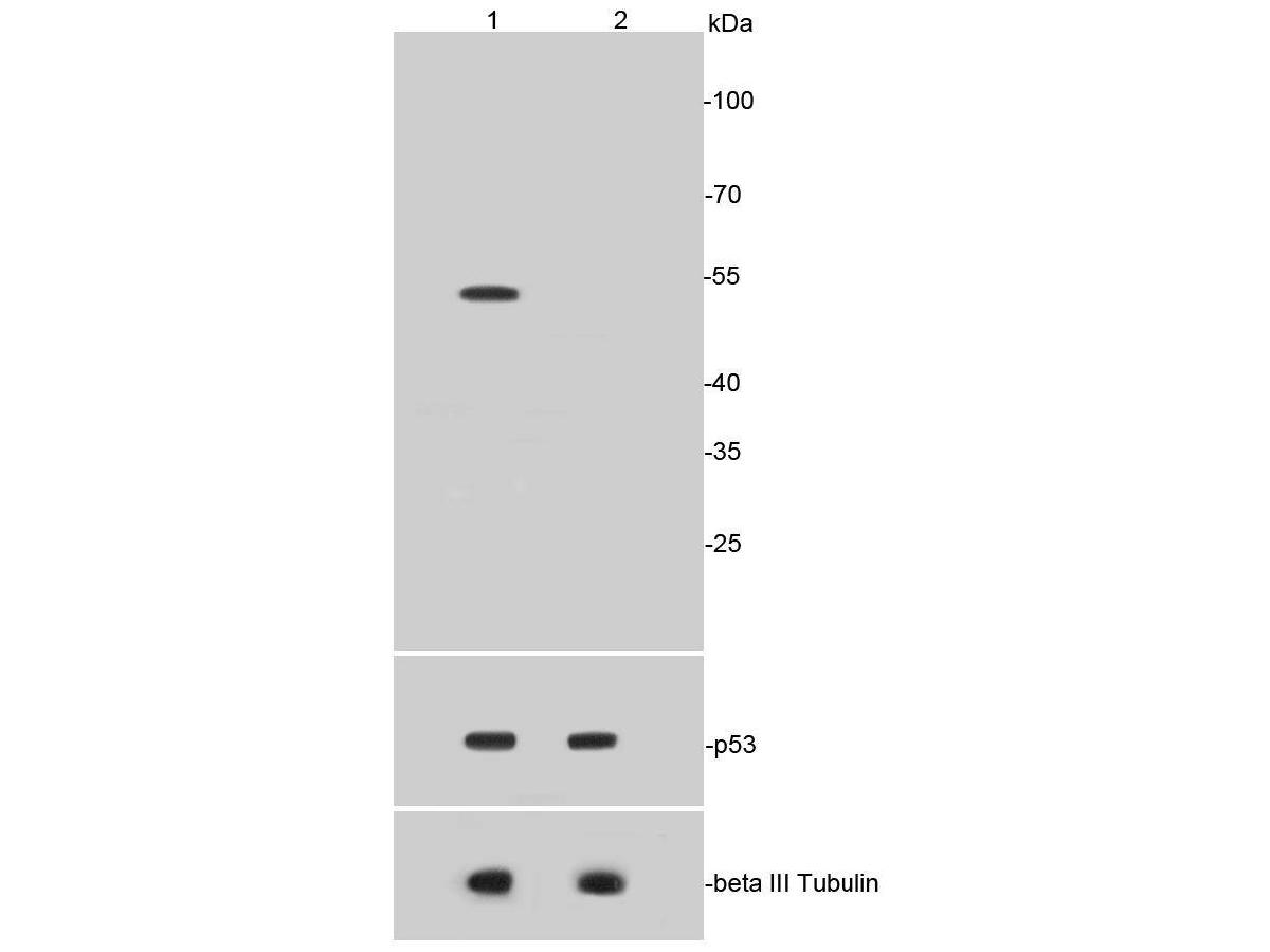 Western blot analysis of p53(acetyl K370) on HepG2 cell lysates using anti-p53(acetyl K370) antibody at 1/1,000 dilution.<br /> Positive control: <br /> Lane 1: HepG2 treated with Etoposide 20uM and Trichostatin A 500 nM for 6 hours whole cell lysates <br /> Lane 2: HepG2 untreated whole cell lysates